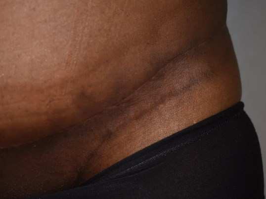 Thick Raised Scar (Keloid) After