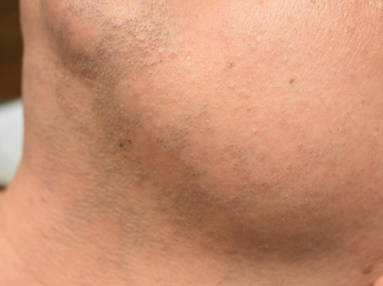 Front And Side View After 1 Treatment