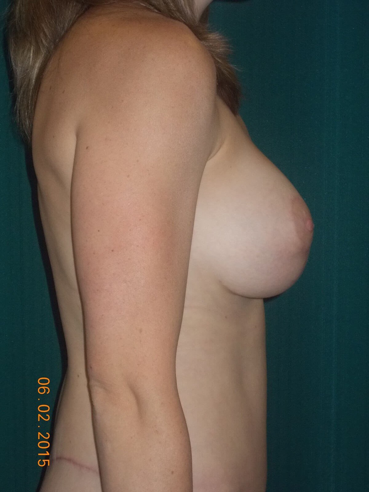 Side View Breasts After
