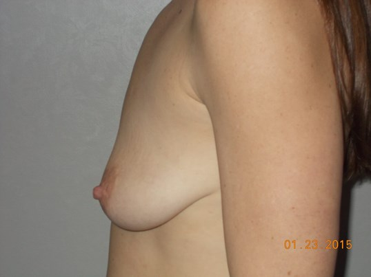 Side View Breasts Before