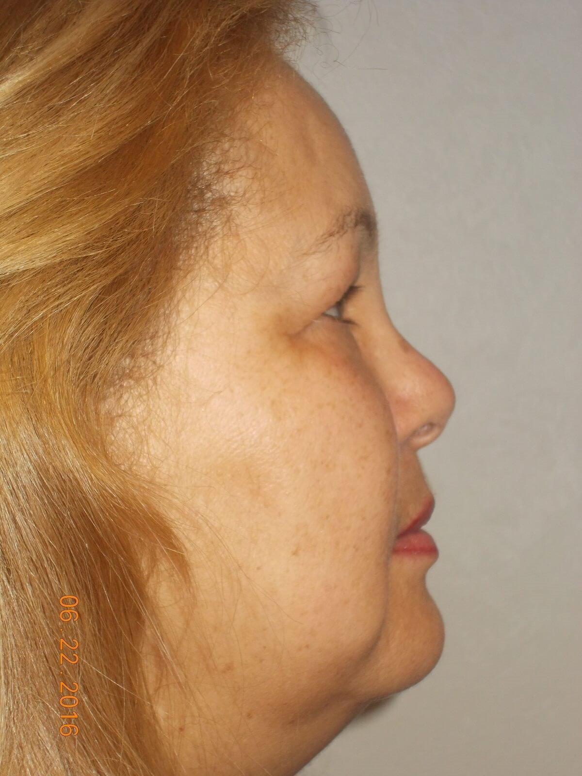 Bilateral Upper Blepharoplasty Before