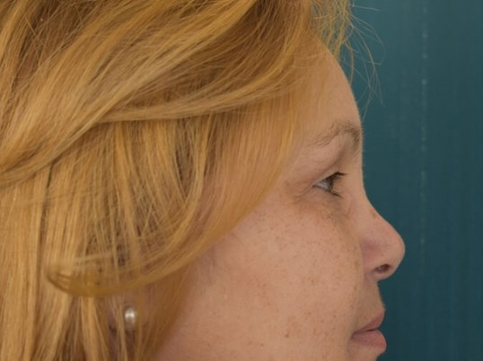 Bilateral Upper Blepharoplasty After