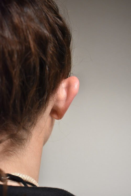 Back View of Right Ear Before