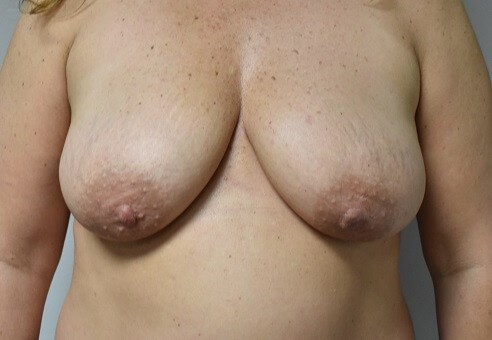 Front View After Mastopexy Before