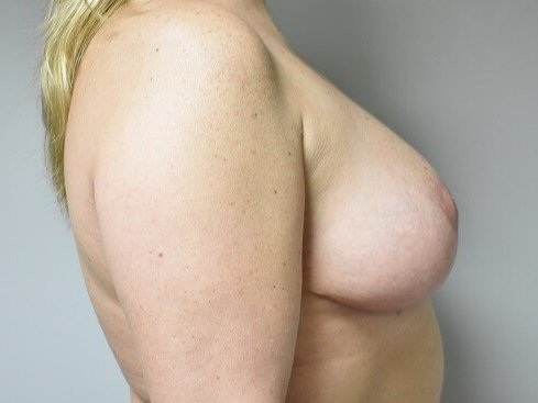 Side View After Mastopexy After