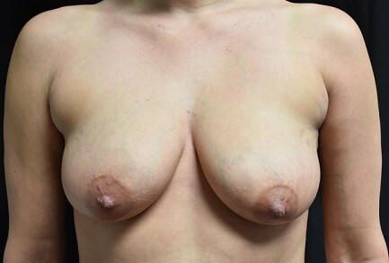 Breast Front View Before