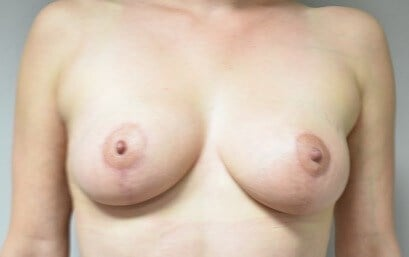 Breast Front View After